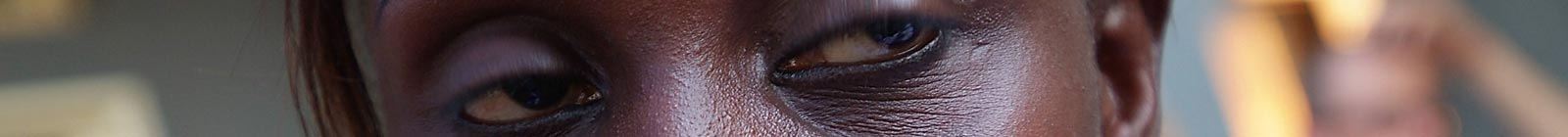 Eyes of Fantakounda, Conakry, Guinea.